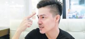 变脸有术 :痘疤翻脸变美男